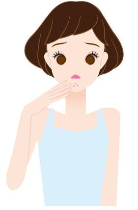 顎にニキビができている女性のイラスト
